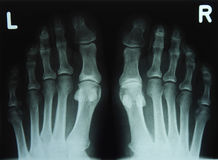 X-ray image of the toes. Left and right Stock Photos