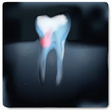 X-ray image with tooth pain. X-ray image with tooth and tooth pain vector illustration