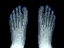 X-ray image of two feet Royalty Free Stock Photos