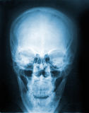 X-Ray image, View of skull men for medical diagnosis. royalty free stock photography