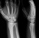 X-ray image of wrist joint, AP and Lateral view. Stock Image