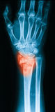 X-ray image of wrist joint Royalty Free Stock Photo