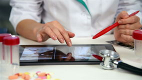 X-ray Images Of Patient On Tablet. Doctor Examines An X-ray Images Of Patient On Touch Pad stock video footage