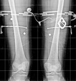 X-Ray Imaging of the knees Royalty Free Stock Photos