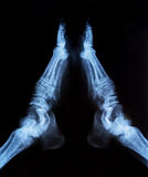 X-ray of joint legs Stock Photography