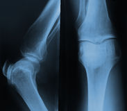 X-ray of the knee. Royalty Free Stock Images