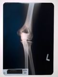 X-ray of a knee. Knee royalty free stock image