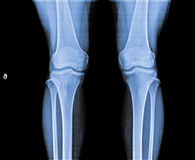 X Ray of Knee joint. royalty free stock images