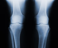 X-ray knee joint Royalty Free Stock Photography