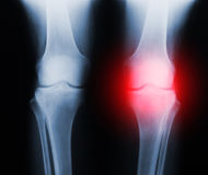 X-ray knee joint trauma Royalty Free Stock Image