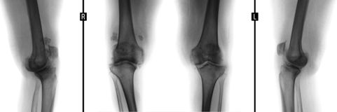 X-ray of the knee joints. Deforming arthrosis. Negative. stock photography