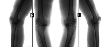X-ray of knee joints. Deforming osteoarthritis. Negative. Royalty Free Stock Photos