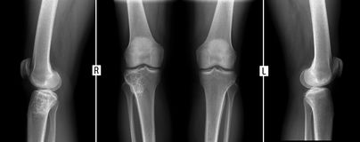 X-ray of knee joints. Giant cell tumor of the right tibial. Radiography of knee joints. Giant cell tumor of the right tibial stock images