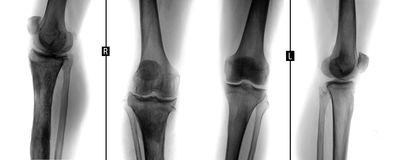 X-ray of knee joints. Osteomyelitis of the right tibial. Negative. royalty free stock photography