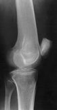 X-Ray of the Knee. Lateral projection of a person's knee, X ray image stock photos