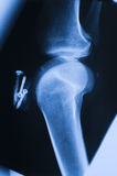X_ray knee Royalty Free Stock Photography
