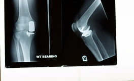 An x-ray of a knee replacement Stock Photos