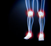 X ray of knee showing knee pain Stock Photography
