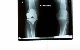An x-ray of the knees Stock Image