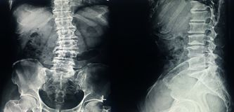 Free X-ray L-S Spine Scoliosis And Loss Lordosis Curve.Narrow L3-4-5 Disc Space With Spur From Degenerative Change.Normal Alignment.No Royalty Free Stock Photo - 163187655