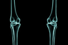 X-ray left and right knee Royalty Free Stock Images