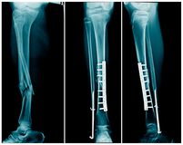 Fracture leg both bone with post operation fixation stock image