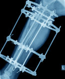 X-ray of leg with screw fixation Stock Photos