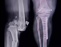 X-ray leg 2 view showing fracture with post operation internal fixation.too Stock Image