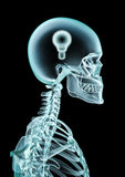 X-ray lightbulb Stock Photography