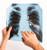 X-ray lung Stock Photo