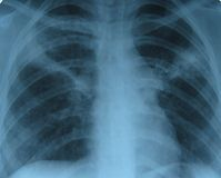 X-ray/lung royalty free stock photo