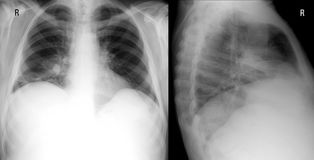 X-ray lung the front and right lateral proection. showing a large infiltrate in the middle lobe of the right lung. Pneumonia. Pneumonia of the middle lobe of royalty free stock photos