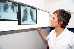 X-ray of lung, pulmonary embolismPE, pulmonary hypertension, C Stock Image
