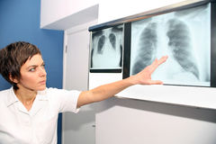 X-ray of lung, pulmonary embolismPE, pulmonary hypertension, C Royalty Free Stock Photo