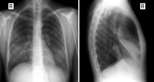 X-ray lung. showing a large infiltrate in the middle lobe of the right lung. Pneumonia. front and lateral projection. Pneumonia of the middle lobe of the right Royalty Free Stock Images