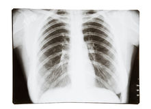 X-ray of lungs Royalty Free Stock Photo