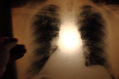 X-ray of lungs Stock Photos