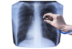 X-ray of the lungs Royalty Free Stock Photos