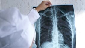 X-ray of the lungs in the hands of the doctor,the attending physician points his finger at the X-ray of the lungs to