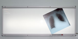 X-ray of the lungs on negatoscope. Photo chest radiographs located on negatoscope Stock Photography