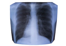 X-ray of the lungs Stock Photo