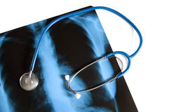 X-ray of lungs and stethoscope Stock Images