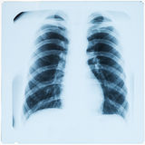 X-ray of male lungs after pneumonia Royalty Free Stock Photo