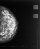 X-ray mammogram Royalty Free Stock Photo