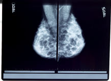 X-ray mammogram. Twin x-ray mammogram right and left Stock Photos