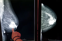 X-ray mammogram royalty free stock images