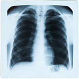 X-ray of man's lungs during pneumonia Stock Image