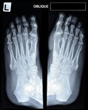 An x-ray of mature man's feet. Stock Photography
