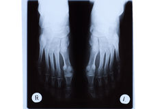 X-ray of Mature Woman Feet Royalty Free Stock Image