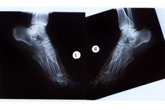 X-ray of Mature Woman Feet Royalty Free Stock Photography